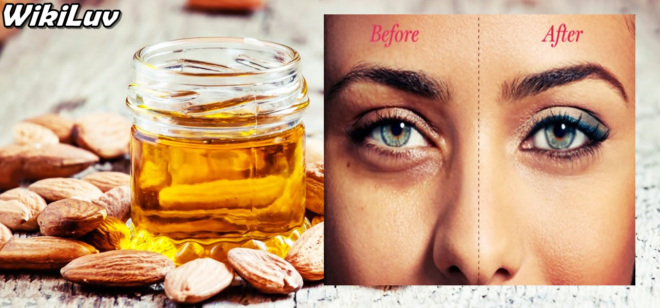 How to get rid of dark circles under your eyes permanently