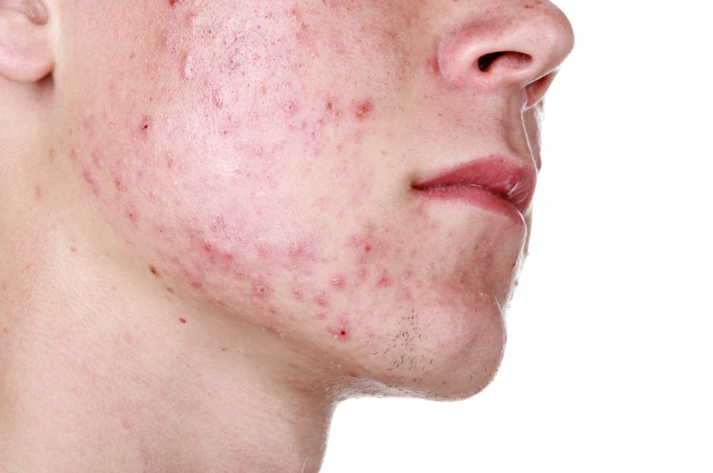 Top 10 Proven Ways To get Rid of Acne and Pimples