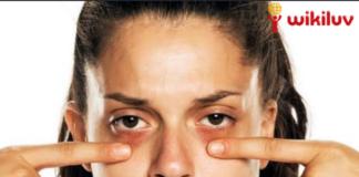 Wikiluv, wikiluv.com, www.wikiluv.com, विकिलव, विकिपीडिया, wikipedia, How to Remove Dark Circles in Hindi, आंखों के काले घेरे हटाने के घरेलू उपाय, त्वचा के लिए बादाम तेल के फायदे, Benefits of almond oil to the skin, How to Remove Dark Circles, काले घेरे हटाने के घरेलू उपाय, बादाम तेल, Almond Oil, बादाम तेल को त्वचा पर लगाने का तरीका, How to apply almond oil on the skin, Almond oil benefits for dark circle, त्वचा से दाग - धब्बे , डार्क स्पॉट, झाइयां, और आँखों के नीचे हुए काले घेरे हटाने का उपाय, दाग धब्बे हटाने के उपाय, डार्क सर्कल हटाने के उपाय, डार्क स्पॉट हटाने के उपाय, झाइयां हटाने के उपाय, चेहरे के दाग धब्बे कम कैसे करें, चेहरे की झाइयों को कम कैसे करें, आँखों के नीचे के काले घेरे कैसे कम करें, घरेलू उपाय से दाग धब्बे कैसे हटाए, ऑर्गन तेल, Argan oil, त्वचा के लिए ऑर्गन तेल के फायदे, Benefits of argan oil to the skin, आर्गन तेल से डार्क सर्कल्स हटाने के नुस्खे, Argan oil good for dark circles, ऑर्गन तेल काले घेरे हटाने के घरेलू नुस्खे, ऑर्गन तेल से आँखों के नीचे के काले घेरे हटाने के घरेलू नुस्खे, ऑर्गन तेल को त्वचा पर लगाने का तरीका, How to apply argan oil on the skin, नारियल तेल, Coconut oil, त्वचा के लिए नारियल तेल के फायदे, Benefits of coconut oil for skin, नारियल के तेल से काले घेरे हटाने के अचूक घरेलू उपाय, नारियल के तेल से काले घेरे खत्म करने के घरेलू नुस्खे, नारियल का तेल काले घेरे हटाने का अचूक घरेलू उपाय, Coconut oil reduces dark circles, नारियल तेल को त्वचा पर लगाने का तरीका , Method of applying coconut oil on the skin, एलोवेरा जेल, Aloe vera gel , त्वचा के लिए एलोवेरा जेल के फायदे,Benefits of aloe vera gel for skin, एलोवेरा से काले घेरे कम करने के उपाय, एलोवेरा के फायदे, एलोवेरा से दाग धब्बे दूर करे, एलोवेरा से दाग धब्बे दूर करने के उपाय, घरेलू नुस्खे से दाग धब्बे दूर कैसे करें, आंखों के नीचे कालापन दूर करने का उपाय करें एलो वेरा जेल से, Aloe vera gel for dark circles, एलोवेरा जेल को लगाने का तरीका,How to apply aloe vera gel on skin, सेब का सिरका,Apple vinegar, त्वचा के लिए सेब के सिरके के फायदे , Benefits of apple vinegar for skin, डार्क सर्कल्स हटान